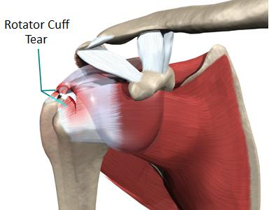 Physiotherapy Amp Chiropractic Treatments For Rotator Cuff