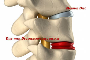 degenerative-disc-vs-normal-disc