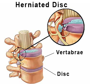 Physiotherapy Amp Chiropractic Treatments For Herniated