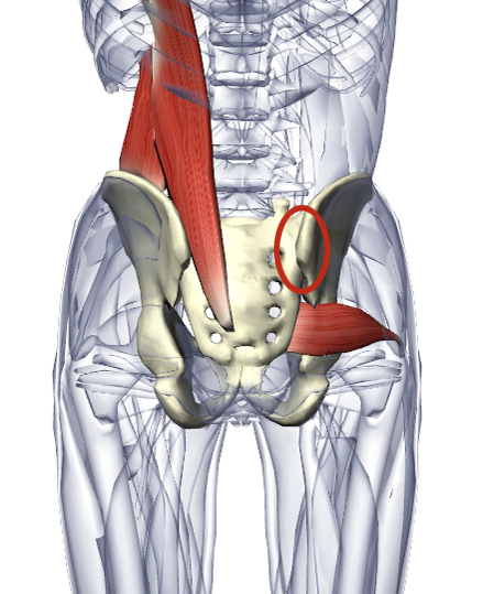 Sacroiliac Joint Dysfunction on ankle replacement diagram