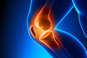 Total Knee Replacement (TKR) or Arthroplasty (TKA)