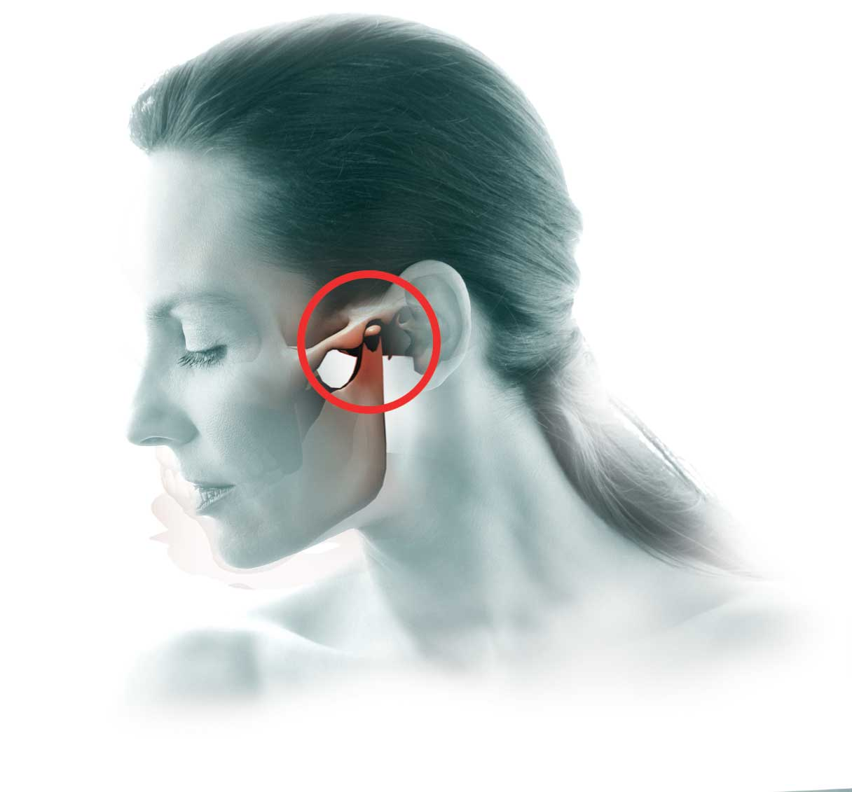TMJ Disorder And Chiropractic Care
