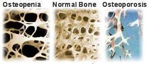 osteoporosis osteopenia
