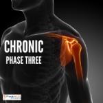 Shoulder Chronic
